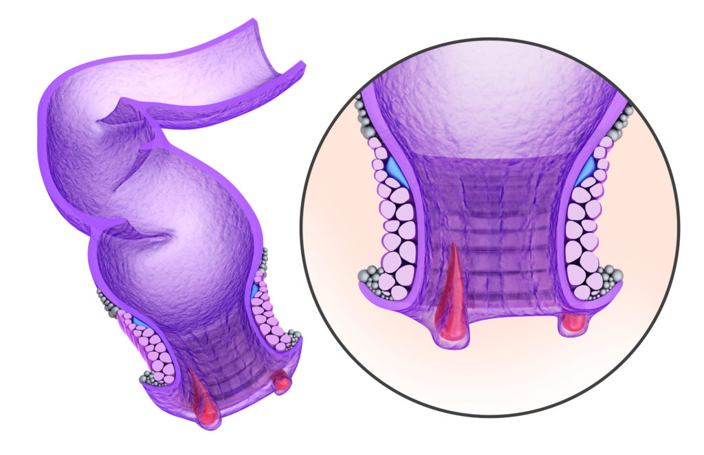 Hemorrhoids : Anal disorders in details, xray view.